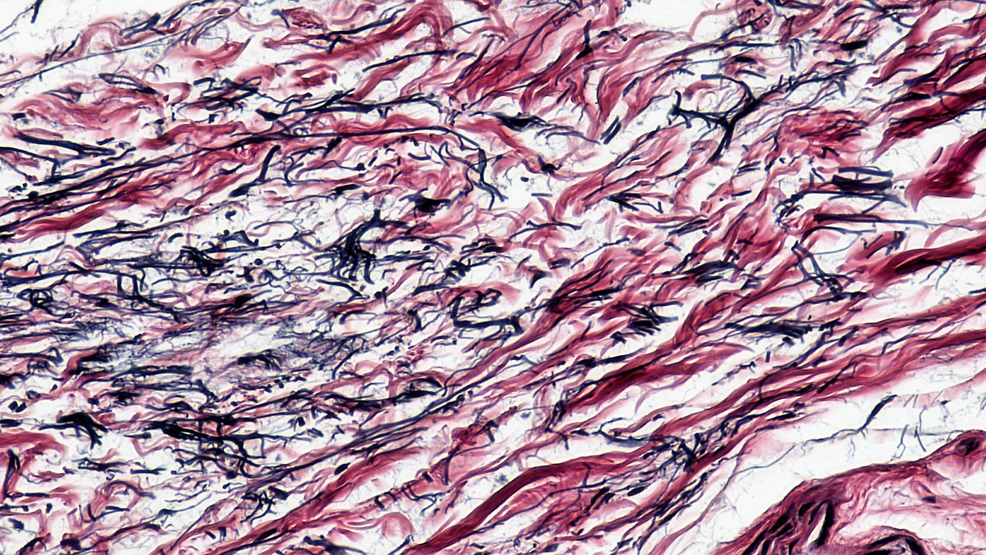 Mammalian Histology Connective Tissues Berkshire Community