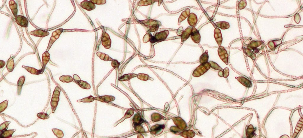 What the fungus looks like under the microscope