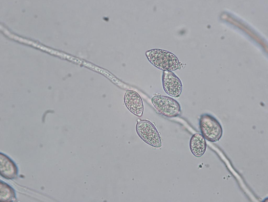 Sporangia on sporangiophores. Sporangia release zoospores that infect leaves