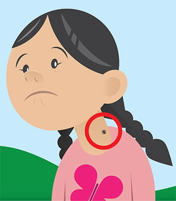 image of illustrated child with tick on skin
