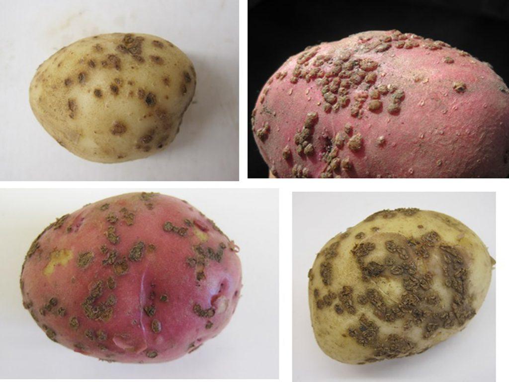 Powdery scab tuber symptoms grouped large 2hyjwxa