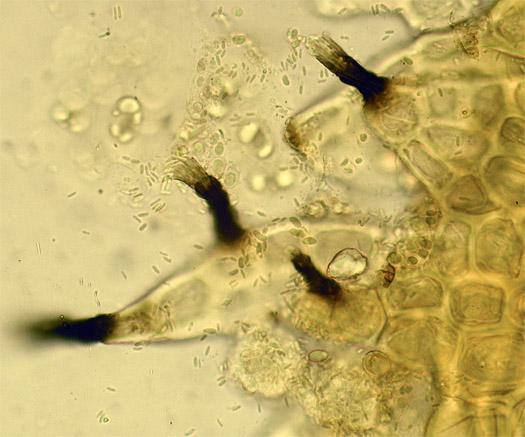 Mystery liverwort fungus