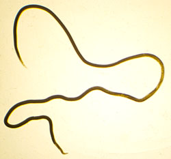 An adult lungworm, almost 3 inches long