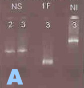 The bands on this agarose gel mean PCR success