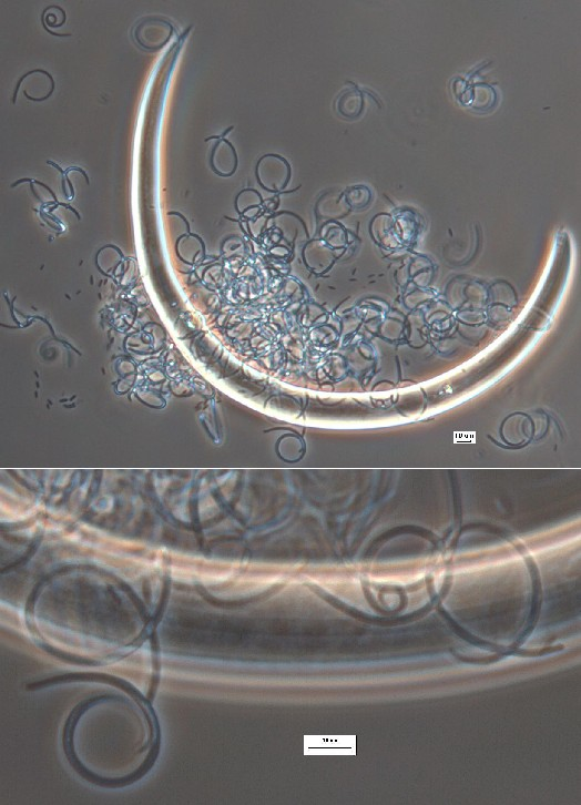 Dead nematode surrounded by helicospores