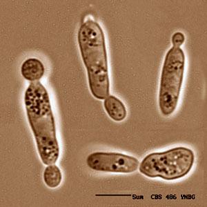 Sporobolomyces roseus
