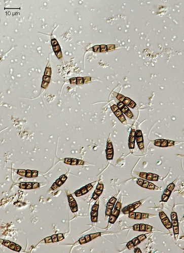 Pestalotiopsis spores with their goofy headgear