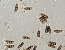 Pestalotiopsis spores