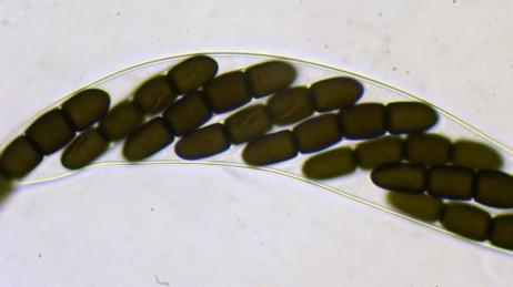 8 spores of Sporormiella australis, by Bjorn Wergen