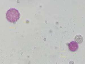 Lychnisfloscuculi2