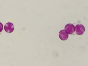 Ranunculusabortivus2
