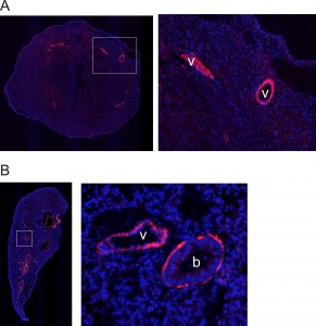 Figure 1: Native fluorescent images (RCaMP1.07) showing expression in frozen sections of A) heart and B) lung. v: vessel b: bronchiole