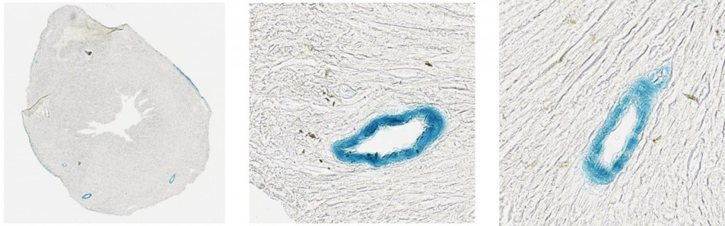 lacZ staining of smooth muscle cells in the heart (line 6)