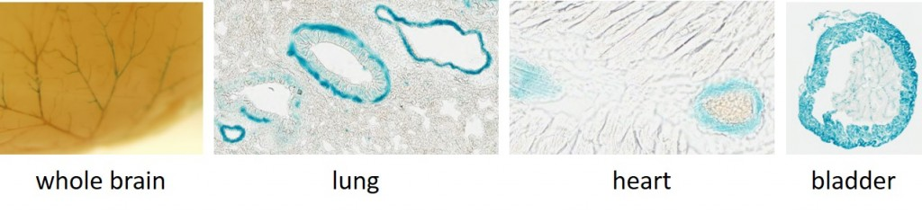 Acta2-CatCh-IRES-lacZ, line 3: lacZ staining of smooth muscle in whole or frozen tissue.