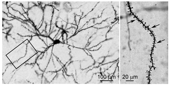 striatal_neuron_updated