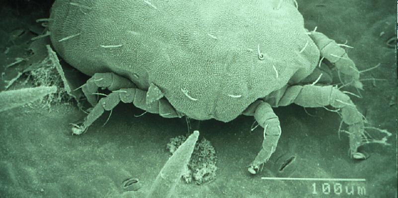SEM of adult tydeid mite Orthotydeus lambi