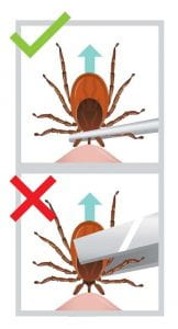 To safely remove a tick, use a point set of tweezers to grasp the tick as close to the skin a possible. Do NOT grab the back end of the tick.