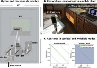 In vivo imaging of cervical precancer using a low-cost and easy-to-use confocal microendoscope