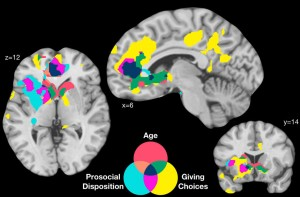 Altruistic brains