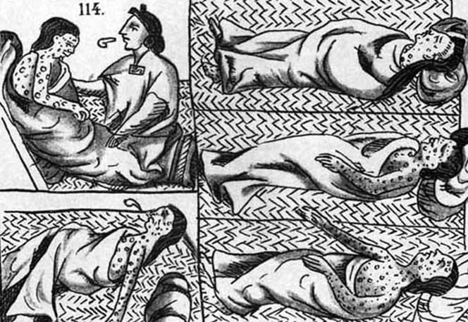 Nahuas suffering from smallpox, as illustrated in the Florentine Codex (public domain)