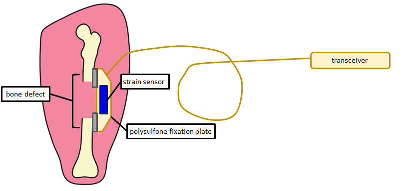 Schematic view of segmental defect fixation plate