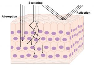 illustration of light scattering through skin