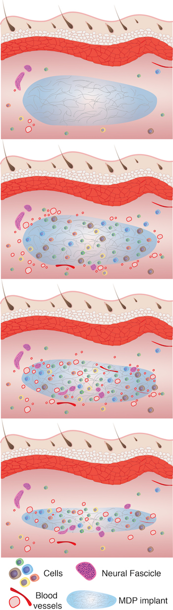 An illustration shows how over six weeks, from top to bottom, a hydrogel developed at Rice University aids tissue remodeling. The process begins with cell infiltration followed by vascularization, innervation and slow degradation of the hydrogel as it is replaced by healthy tissue. (Credit: Hartgerink Research Group/Rice University)