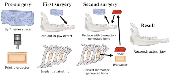 Researchers at Rice University and the University of Texas Health Science Center at Houston develop a technique to grow custom-fit bone implants to repair jawbone injuries from a patient's own rib. (Credit: Illustration courtesy of the Mikos Research Group/Rice University)