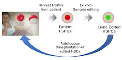 An illustration shows the process by which a patient's own hematopoietic stem and progenitor cells (HSPCs) can be removed, their genes edited and the corrected hematopoietic stem cells (HSCs) returned to treat sickle cell disease. (Credit: Illustration by Gang Bao/Rice University)