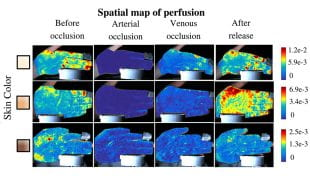 """PulseCam blood perfusion maps show blood flow to the hand during """"post-occlusive reactive hyperemia tests."""