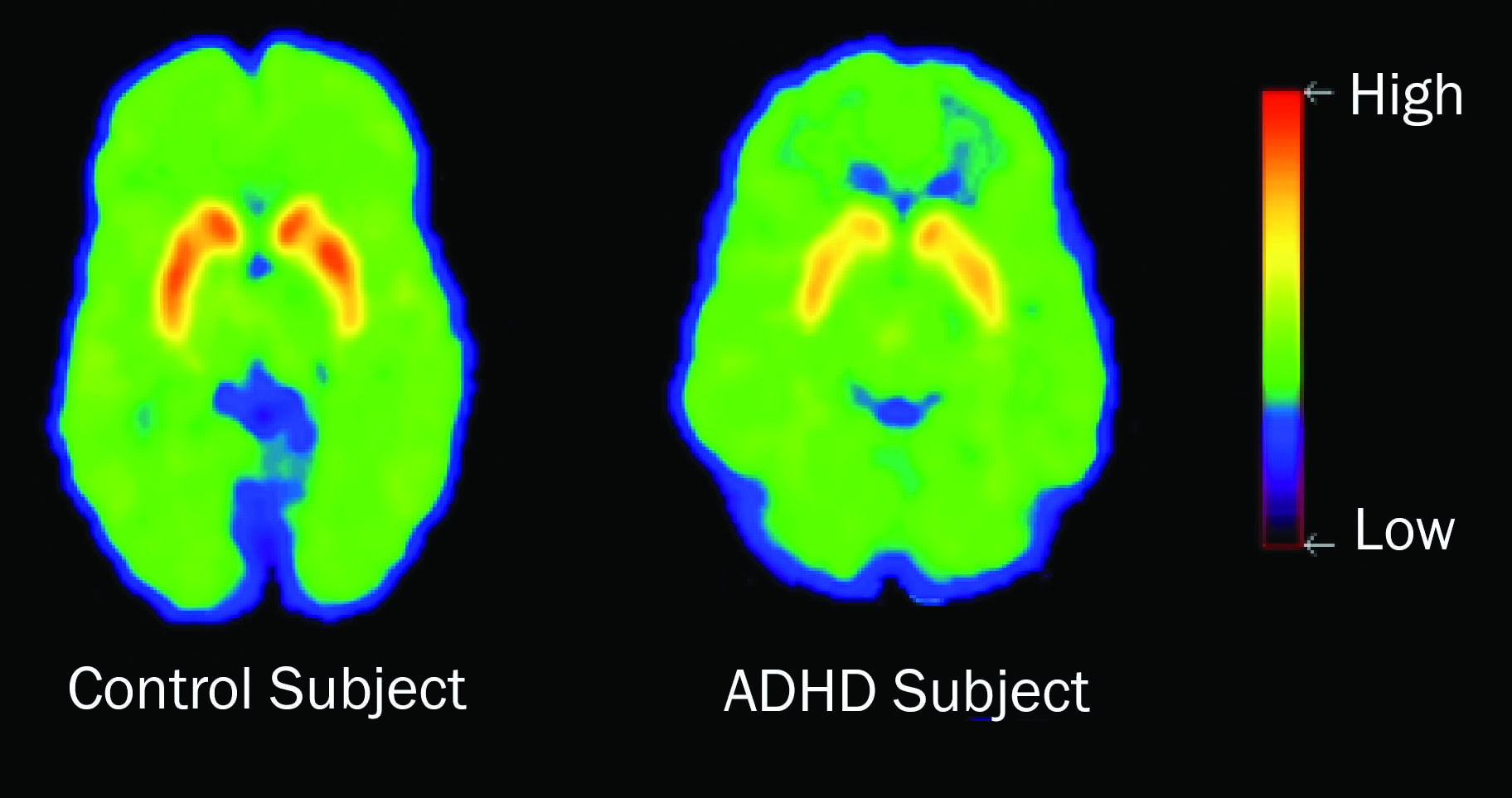 Mri Shows Brain Differences Among Adhd >> Invisible Disabilities The Pathology Of Adhd And Autism
