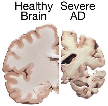 A comparison between a healthy brain to a brain suffering from severe Alzheimer's disease, showing the significant white and grey matter reduction (Source: Wikimedia Commons).