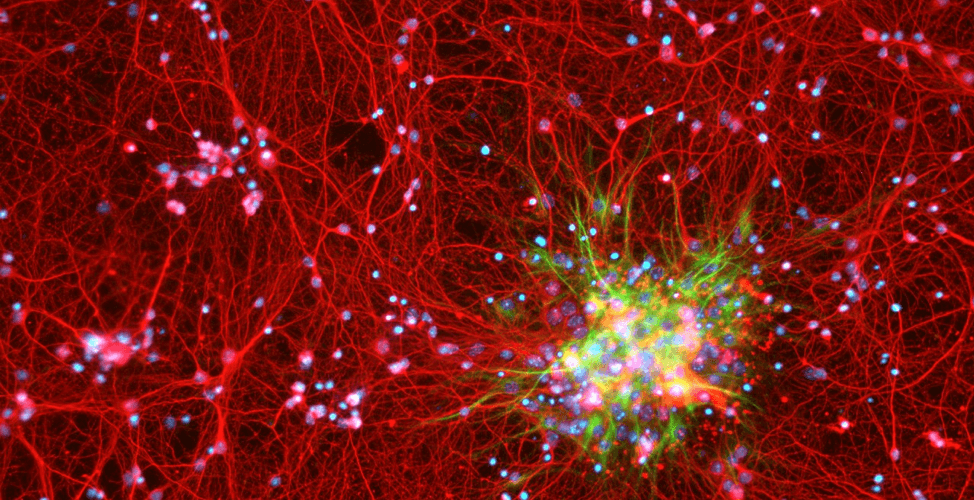 Lab-Grown Neurons: A Revolution in Stem Cell Research