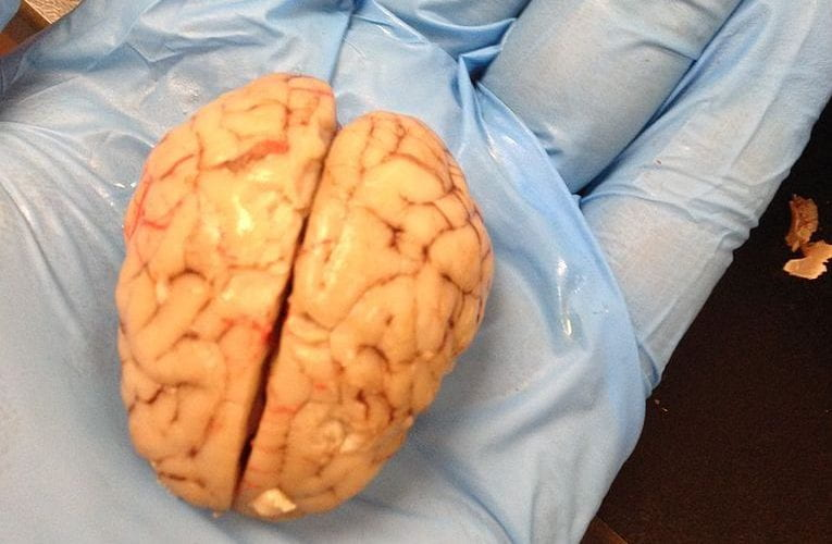 Bringing the Brain Back to Life?
