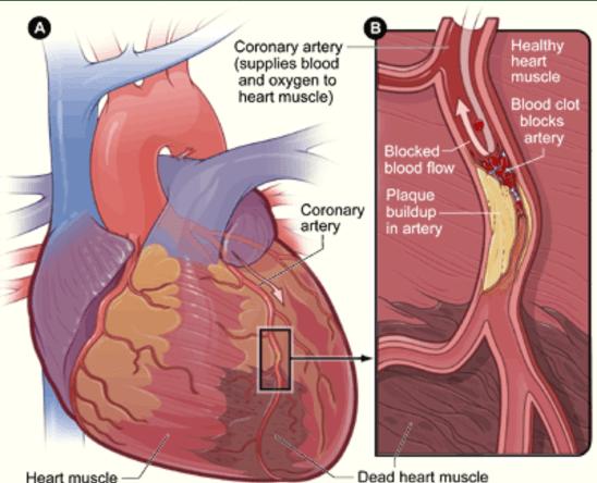 Childhood Trauma Leads to Increased Risk of Heart Disease in Elders