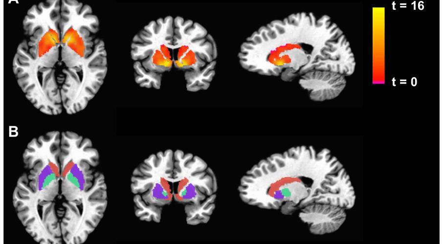 Recent study conducted by Duke University researchers reveals critical limitation of fMRI measurements