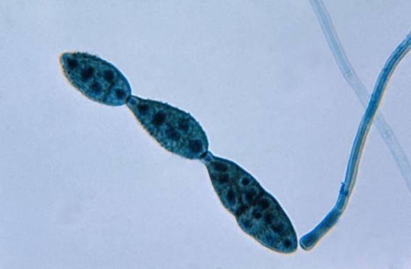 Subterranean Eukaryotes