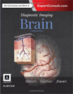 diagnostic-brain