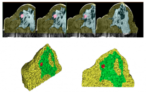 A 3D solid mesh is generated using two-dimensional segmented MR images. The cross section shows the location of the tumor in the model.