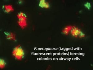 P. aeuginosa forming colonies on airway cells