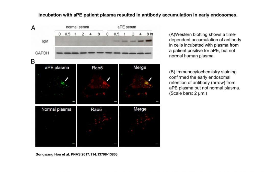 Autoimmune Inflammation Pathway Discovered