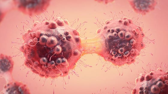 Northwestern researchers on a big breakthrough: Slowing cancer cell growth