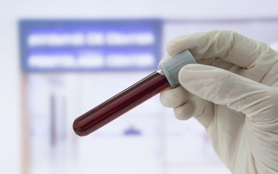Blood test can reveal human's precise internal clock, improve treatment