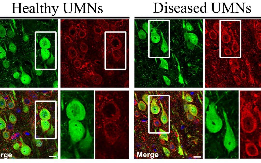 Mechanism behind upper motor neuron degeneration revealed