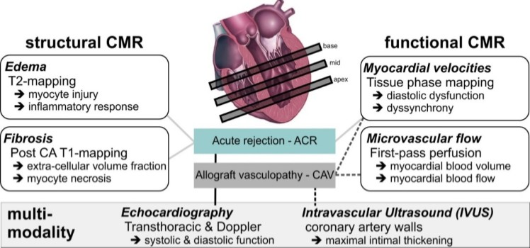 Heart failure and cardiac transplant northwestern cardiovascular comprehensive cardiac structure function analysis in heart transplantation ccuart Choice Image