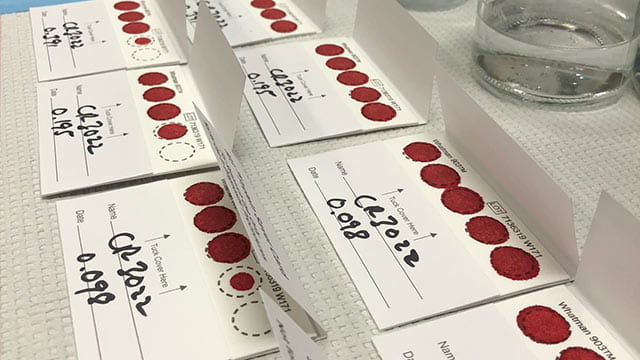 Dried blood samples for COVID-19 antibody testing displayed in rows.