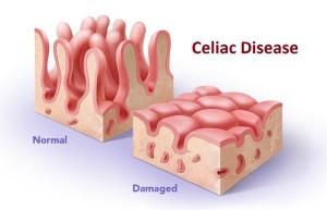 celiac disease_0177ac66208d5826963c65f8b2c56426