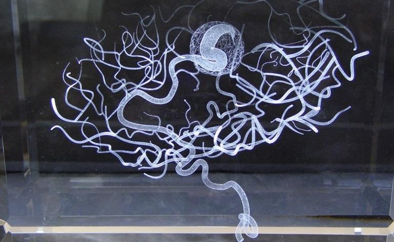 Memory of Brain Malformation, Katharine Dowson