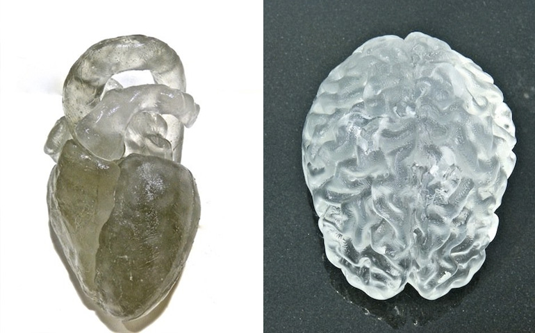 My Brain, My 3D Heart, Katharine Dowson