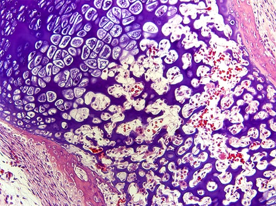 Developing bone marrow (Image courtesy of Evseenko Lab)